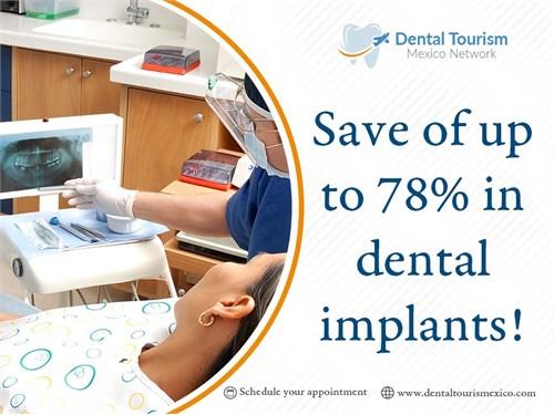Complete dental services
